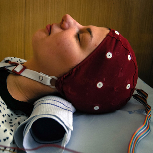 Epilepsy is a disease characterized by recurring seizures of uncontrolled brain neuron excitatory...