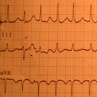 Tachyarrytmias are disorders of heart rhytm with heart rate more than 100 bpm. The algorithm is...